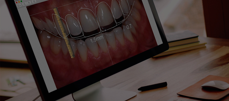 Estética Dentária / DSD