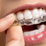 tratamento com os alinhadores dentarios