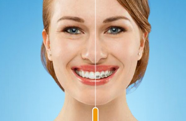 aparelhos dentarios esteticos