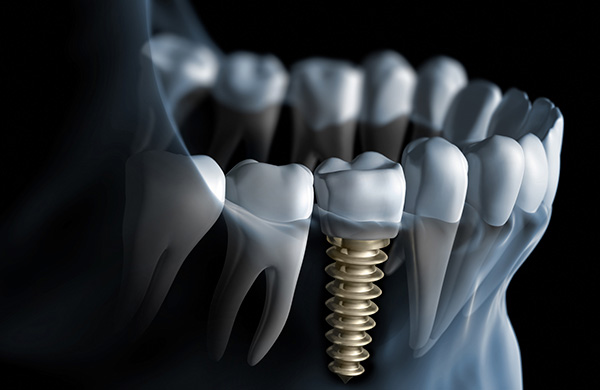 procedimento de implante dentario